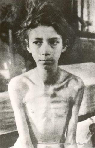 Petite fille Hongroise Une jeune fille de 10 ans libérée à Birkenau par l'Armée rouge le 27 janvier 1945. Auteur: inconnu